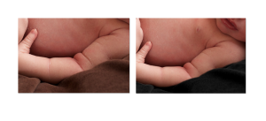 baby photographer - getting rid of dried skin.